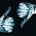 My Take: Chiropractors & X-Rays